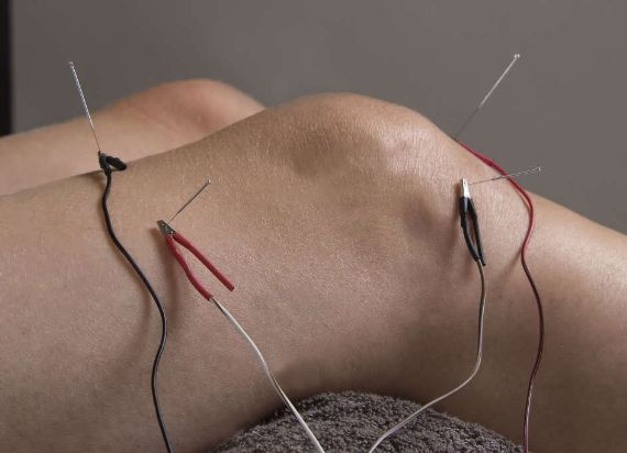 Treatments and Services Medicine Acupunture Functional